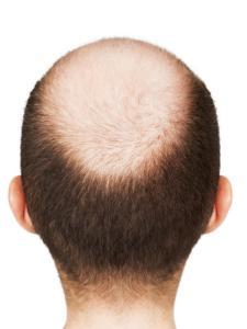 Alopecia Totalis Stadium VI