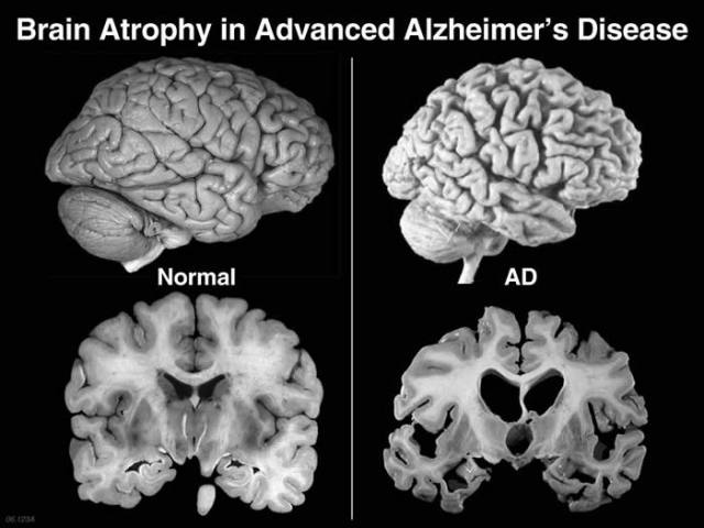 alzheimers-disease-term