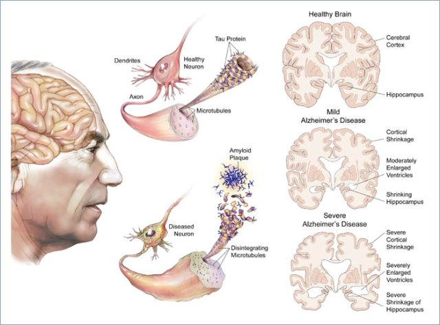 stage alzheimer